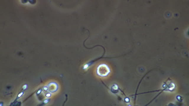 Human sperm with two tails swimming ineffectually