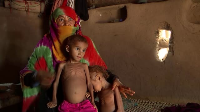 humanitarian crisis; humanitarian crisis; yemen: hodeidah: int malnourished children nadia and fatima looking into camera ribs showing through skin... - yemen stock videos & royalty-free footage