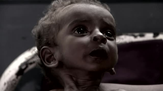 humanitarian crisis; t24041715 / tx 24.4.2017 somalia: int malnourished young child severely malnourished baby t25041710 / tx 25.4.2017 somaliland:... - horn of africa stock videos & royalty-free footage