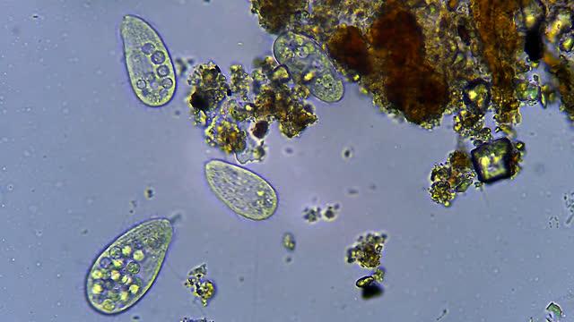 сiliates microorganisms, microscopic magnification 40x - unicellular organism stock videos & royalty-free footage