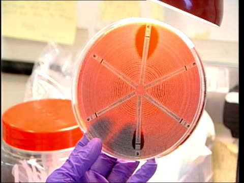 improving/mrsa warning; lunchtime news: sue saville lib england: int scientist looking at petri dish full of agar jelly magnified image of mrsa... - staphylococcus aureus stock videos & royalty-free footage