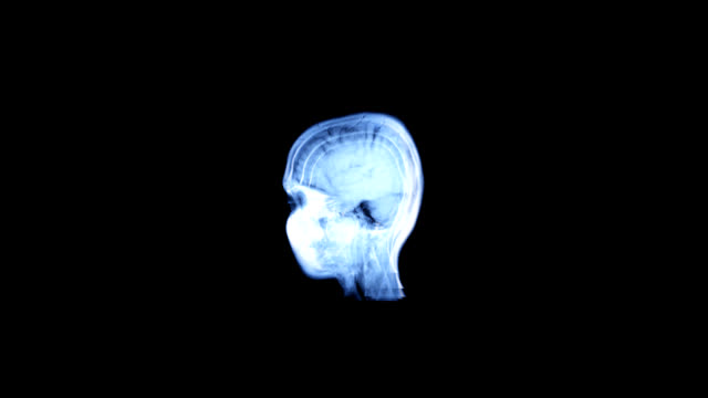 in profile brain mri scan-a diagnostic method - midbrain stock videos & royalty-free footage