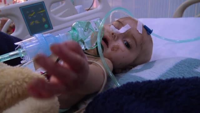 in the intensive care unit of sanaa's alsabeen hospital 10 month old amani is suffering from kwashiorkor a form of severe protein malnutrition... - yemen bildbanksvideor och videomaterial från bakom kulisserna