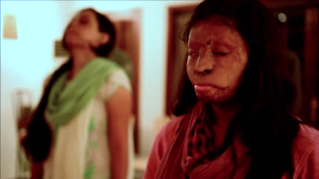 Indian acid attack vicims take part in a yoga class