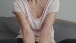 inflammation of the skin on the arms