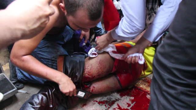 vídeos y material grabado en eventos de stock de injured bloody men receive help from crowd on august 16 2013 in cairo egypt - recibir