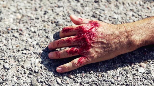 lesioni mano con sanguinosa lesioni - avambraccio video stock e b–roll