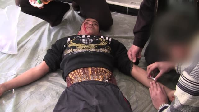 injured residents of alqusayr receive treatment in the field hospital following shrapnel and bullet wounds from shelling and sniper fire by president... - pain stock videos & royalty-free footage