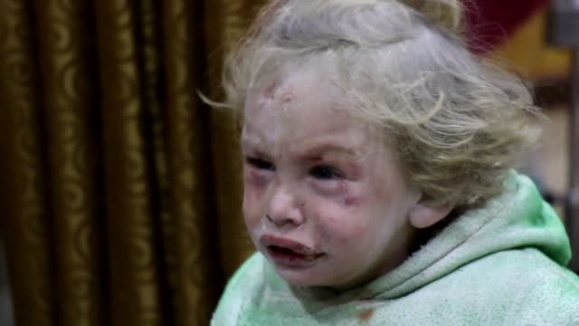 injured syrian civilians receive treatment at a hospital after russian airstrikes hit syria's idlib province on february 04, 2018. eight people were... - air raid点の映像素材/bロール