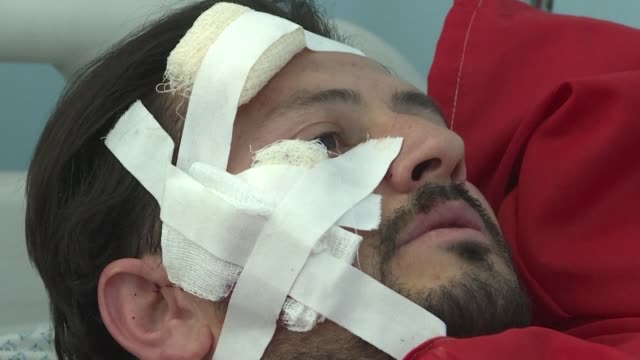 injured victims react after taliban suicide bombers killed at least 48 people and wounded dozens more in two blasts one at a campaign rally for the... - verbrechensopfer stock-videos und b-roll-filmmaterial