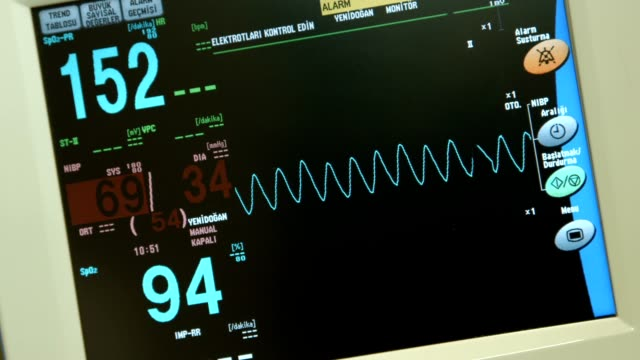 intensive care - cardiac conduction system stock videos and b-roll footage