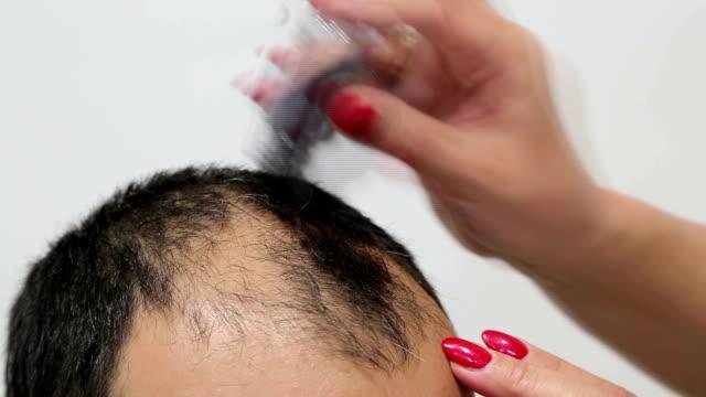 interesting method for baldness - talcum powder stock videos & royalty-free footage