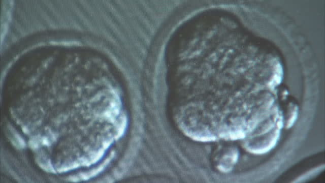 interior close ups digital microscope display showing human eggs - stammzelle stock-videos und b-roll-filmmaterial
