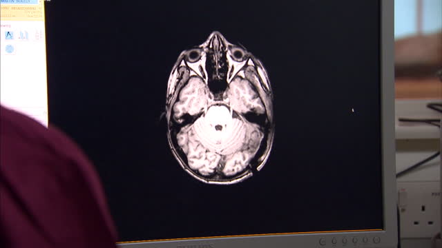interior shots doctors looking at mri scan of patients brain on computer screen as doctors manipulate the contrast of the image. on october 13, 2014... - neurosurgery stock videos & royalty-free footage