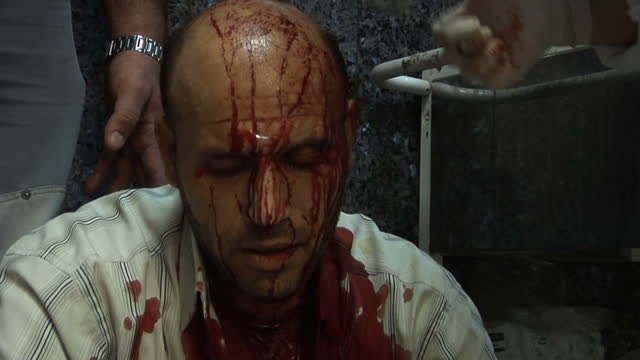 interior shots injured man with blood streaming down his face. interior close up blood pouring from wound around his eye. interior shots injured... - face down stock videos & royalty-free footage