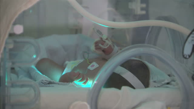 interior shots of premature babies in neonatal ward in incubators with nurses checking life signs and stats on screens more premature babies are... - 未熟児点の映像素材/bロール