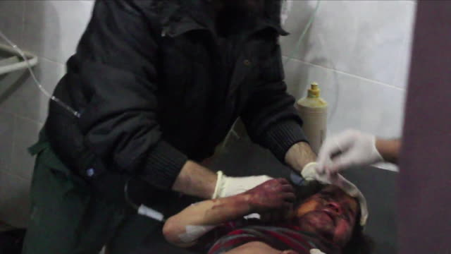 interior shots of wounded people being treated for their injuries after airstrikes on afrin on 19 march 2018 in afrin, syria - isis stock-videos und b-roll-filmmaterial
