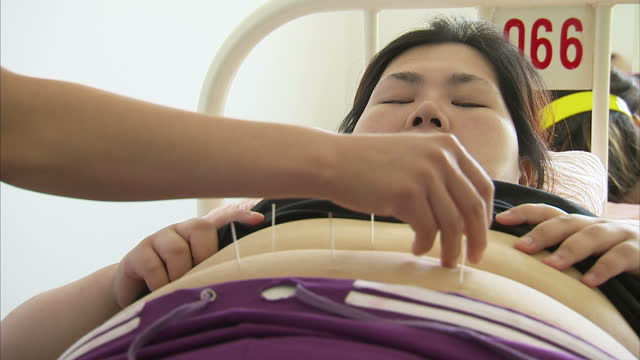 Interior shots overweight girls receiving acupuncture in bed looking in pain on June 01 2014 in Beijing China