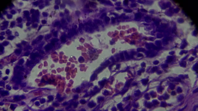interstitial pneumonitis human pathology sample under microscopy in different area - respiratory machine stock videos & royalty-free footage