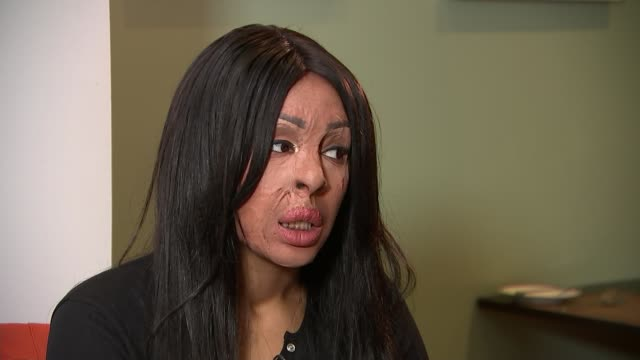 Interview with acid attack survivor Naomi Oni on new documentary ENGLAND London INT Naomi Oni interview and setup shot with reporter SOT
