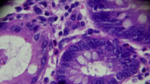 intestinal adenomatosis human pathological sample under microscope - microscope slide stock videos and b-roll footage