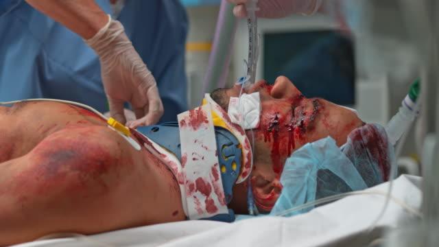 DS Intubated car crash victim manually ventilated