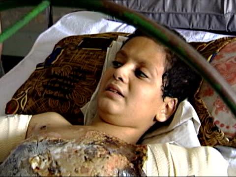 iraqi teenager ali abbas in britain for treatment; lib iraq: baghdad: chewader hospital catherwood sitting down next hospital bed where ali is lying... - torso stock videos & royalty-free footage