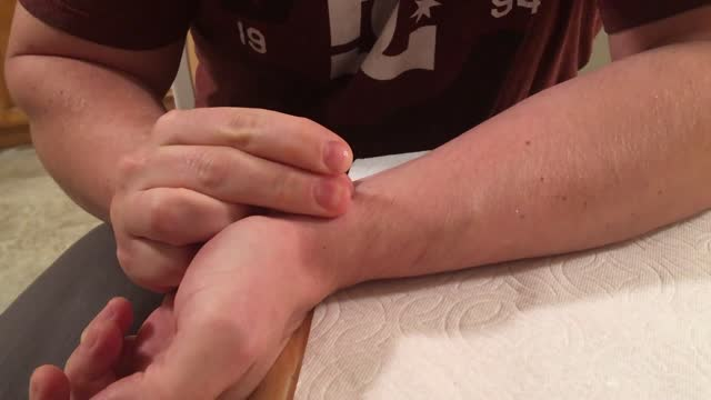 jason, known as 'the wrist cyst' guy, tried to make the regular popping of his ganglion cyst a festive affair, using a sharpened candy cane. sadly,... - human nervous system stock videos & royalty-free footage