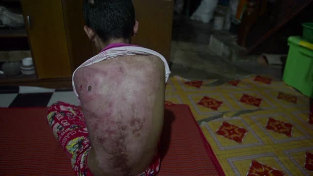 khin khin tun's back is a patchwork of burns a red raw map of the abuse she says she suffered at the hands of her former employer one of the vast... - patchwork stock videos & royalty-free footage