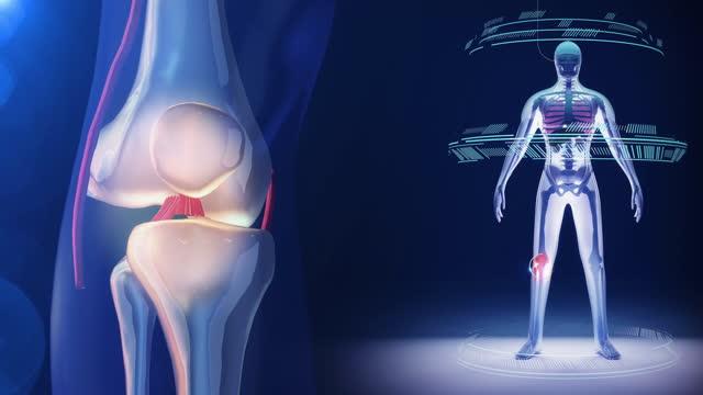 vídeos de stock, filmes e b-roll de ligamento cruzado artroscópico do joelho - membro parte do corpo