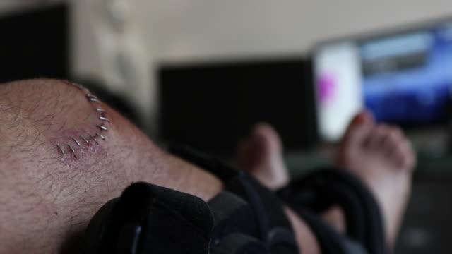 knee injury - leg brace stock videos and b-roll footage