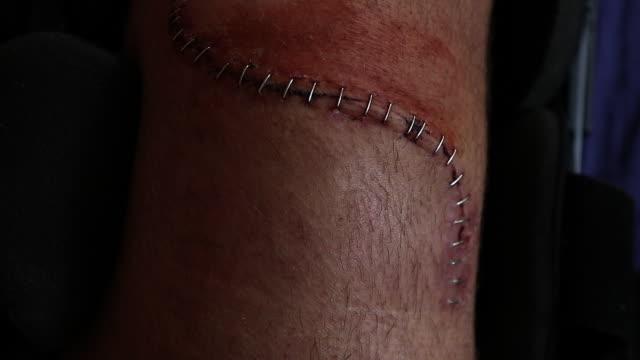 vídeos de stock e filmes b-roll de knee injury - agrafo