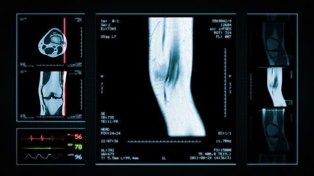 stockvideo's en b-roll-footage met knee mri scan. top, front and lateral view. blue. - biomedische illustratie