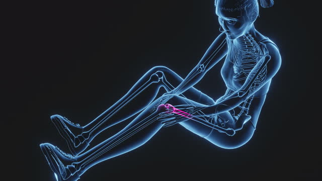 knee pain - the human body stock videos & royalty-free footage