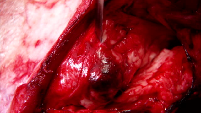 vídeos de stock, filmes e b-roll de a knife cuts into a piece of meat in a butcher shop in italy. available in hd. - nojo