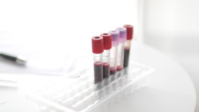di medicina di laboratorio attrezzature per prova di sangue su sfondo bianco, 4 k (uhd), concetto medico - virus zika video stock e b–roll