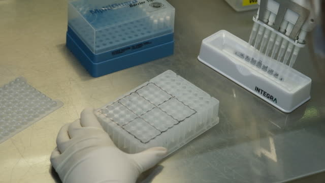 lab technicians collects saliva samples for covid-19 tests at prenetics laboratory, in hong kong, china, on friday, july 31, 2020. - ricerca genetica video stock e b–roll