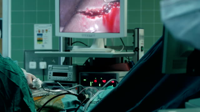 laparoscopic liver resection process showed on screen - liver stock videos and b-roll footage
