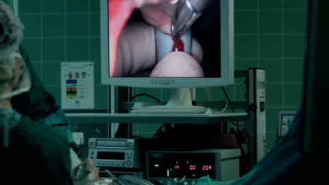 laparoscopic liver resection process showed on screen - endoscope stock videos & royalty-free footage