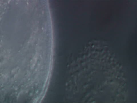 large ciliate with reflective cytoplasmic granuals - ciliate stock videos and b-roll footage