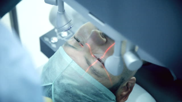 laser-augenchirurgie - operating stock-videos und b-roll-filmmaterial