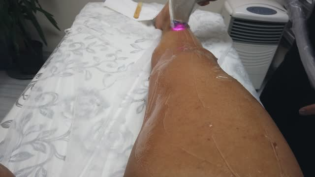 laser hair removal on man legacies. epilation process - removal man stock videos & royalty-free footage