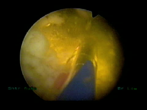 laser prostate surgery. endoscope image of a greenlight hps laser inside the urethra of a patient undergoing a prostatectomy (removal of the prostate gland). the guide light is pink, the laser is yellow and dead cells are white.. - prostate stock videos and b-roll footage