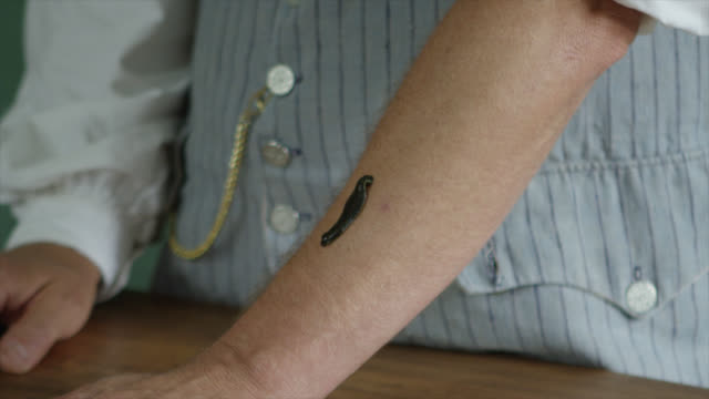 leech on mans arm. medical useage - 18th century stock videos & royalty-free footage