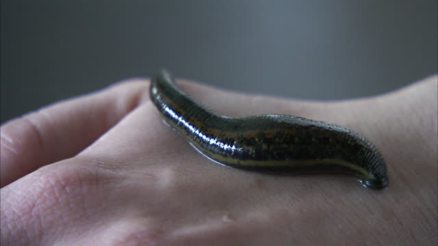 a leech rests on a human hand. - leech stock videos & royalty-free footage