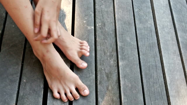 leg and foot scratch - dry stock videos and b-roll footage