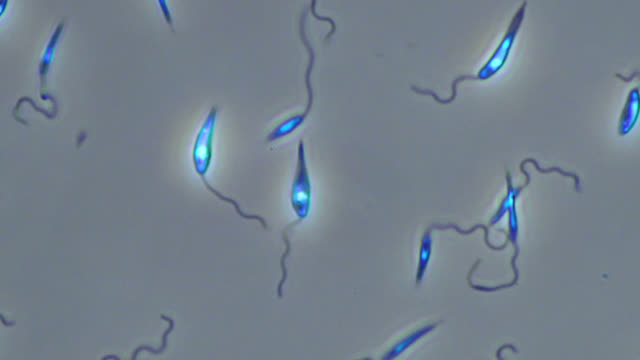 stockvideo's en b-roll-footage met leishmania major parasites - vergroting