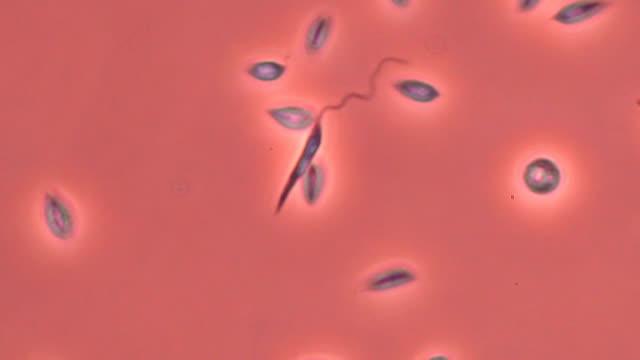 leishmania mexicana parasites - ulcer stock videos & royalty-free footage