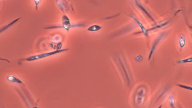 leishmania mexicana parasites - pathogen stock videos & royalty-free footage