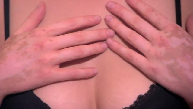 leukoderma - spots on hands - booby stock videos & royalty-free footage